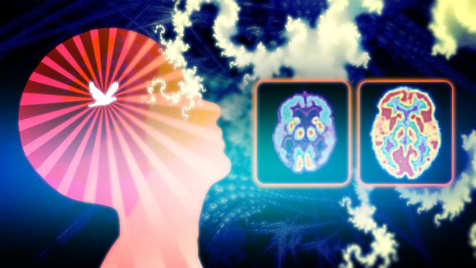shizofreniya-izlechima