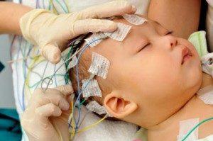 priznaki-epilepsii-u-grudnichkov