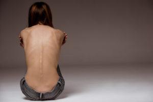 anoreksiya-do-posle