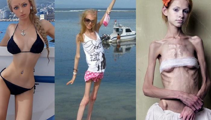 anoreksiya-foto-devushek