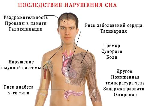 prichiny-bessonnitsy-u-muzhchin