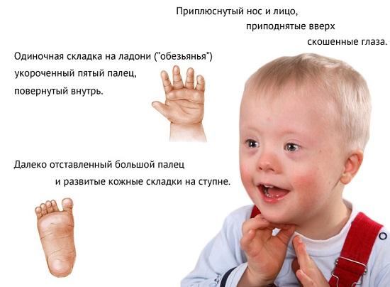 oligofreniya-v-stadii-debilnosti