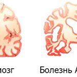 Болезнь Альцгеймера: начальные симптомы и признаки, лечение, препараты, продолжительность жизни