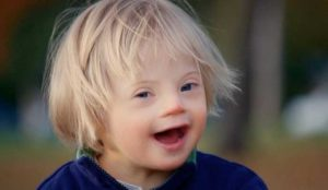 deti-d-sindromom-foto