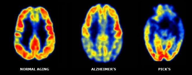 МРТ головного мозга в норме, при болезни Пика и Альцгеймера