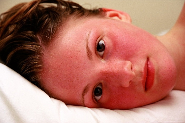 lechenie-doma-blashing-sindrom