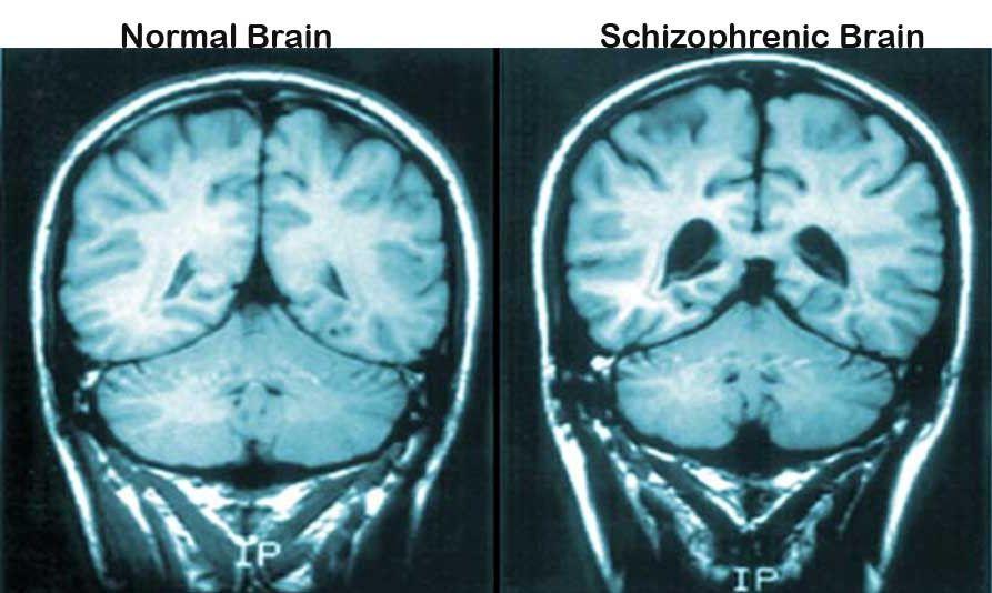 bolezni-po-psihiatrii