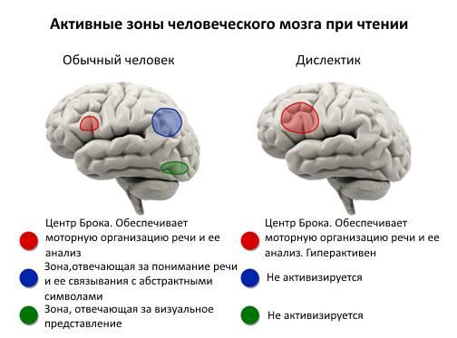 mozgi-disleksika
