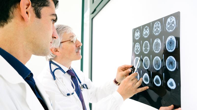 izuchenie-mozga