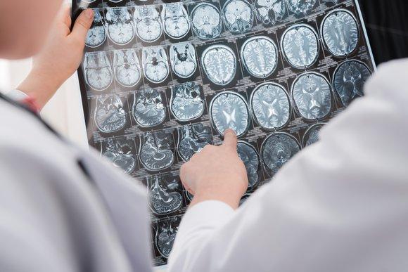 rabota-mozga-epilepsiya
