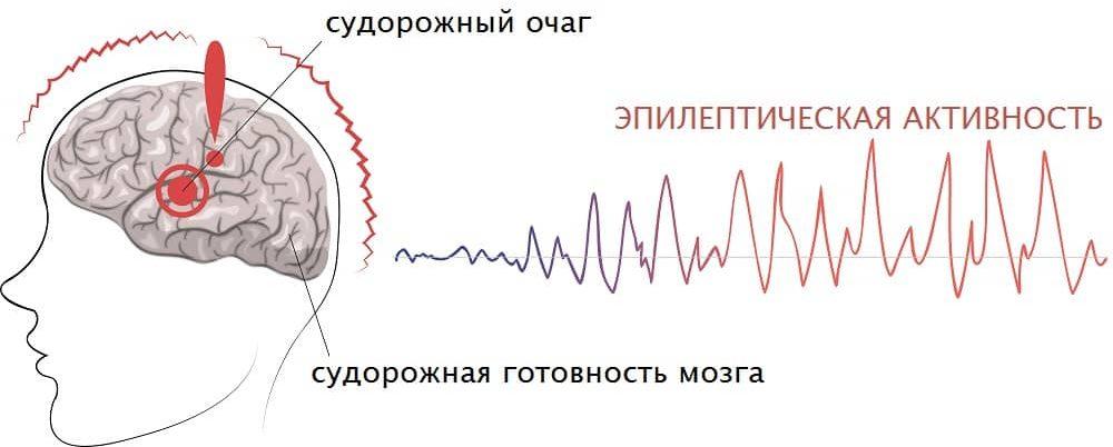 sudorogi-epilepsii